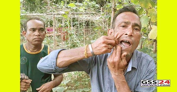 কমলগঞ্জে পূর্ব বিরোধের জেরে সন্ত্রাসী হামলা : আহত-৩